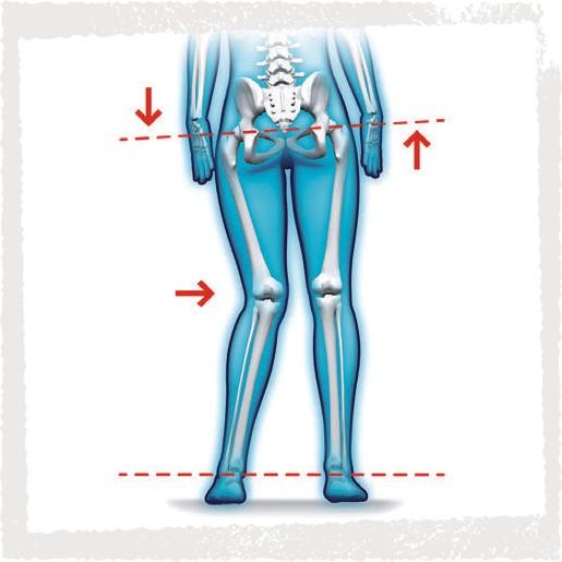 Haltungsanalyse - anatomische/funktionelle Beinlängendifferenzen