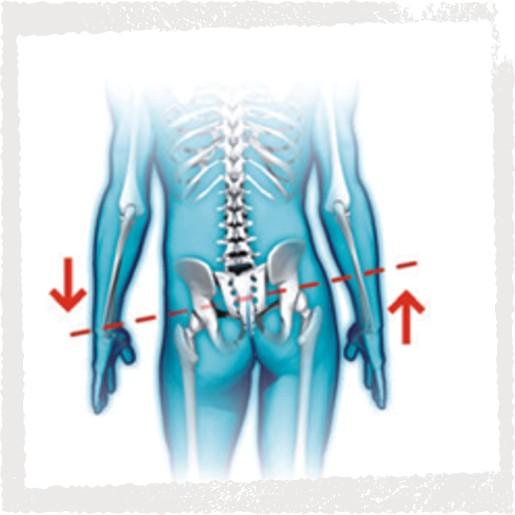 Haltungsanalyse - Rotationen und Schiefstand im Bereich Becken