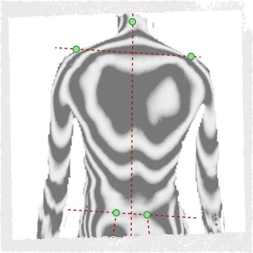 Haltungsanalyse - Feststellung von Lordose- und Kyphoseverlauf entlang der Wirbelsäule